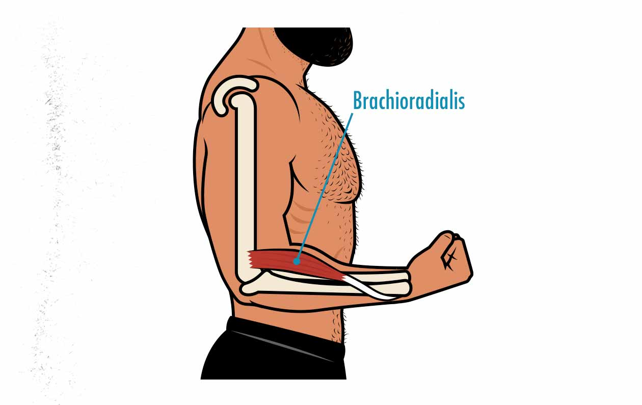 Diagram showing the anatomy of the brachioradialis muscle.
