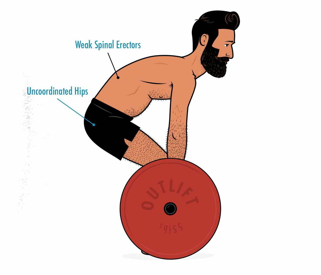 Illustration of a beginner doing a conventional deadlift with a rounded back.