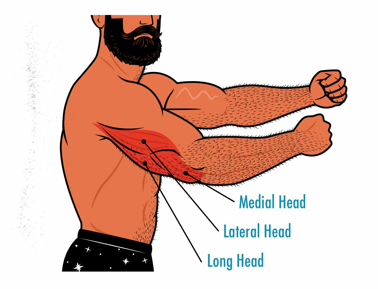 Illustration of the triceps muscle, showing the medial head, lateral head, and long head of the triceps.