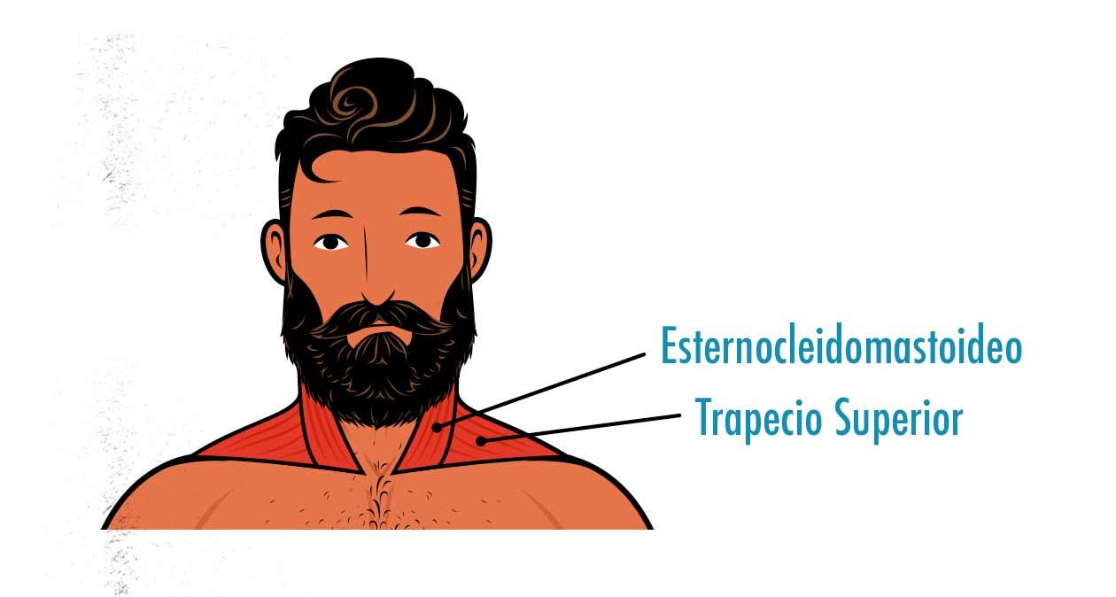 Ilustración mostrando a los músculos del cuello y la parte superior de los trapecios.