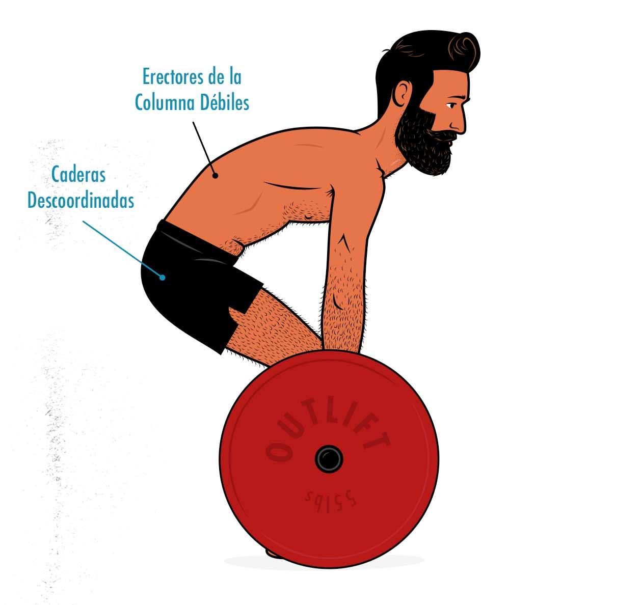 Ilustración de un hombre haciendo un peso muerto con mala técnica.